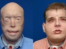 41-летний пожарный с обгоревшим лицом Патрик Хардисон