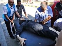 Пострадавшие при обстреле жилых районов в Сирии