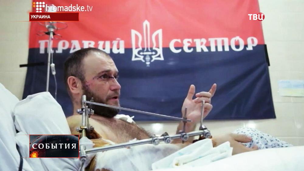 Раненый Дмитрий Ярош
