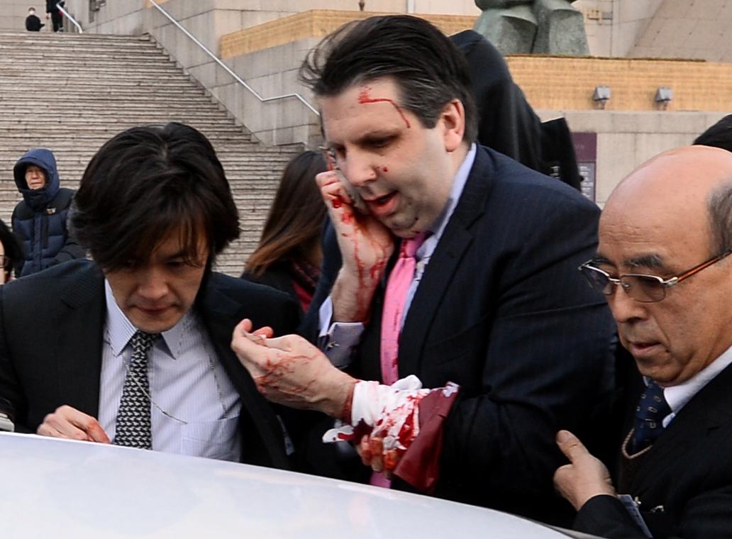 Посол США Марк Липерт после нападения