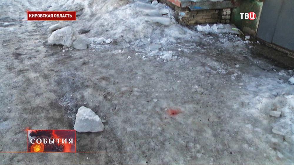 Падение наледи с крыши в Кировской области