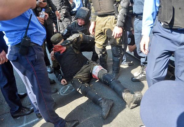 Сотрудник правоохранительных органов, пострадавший во время столкновений с участниками митинга у здания Верховной Рады Украины