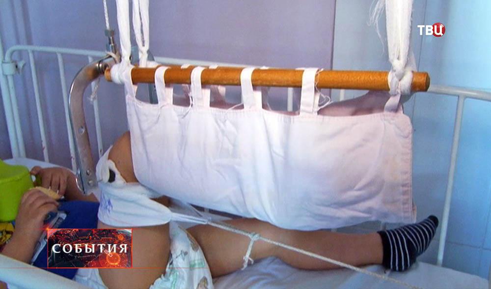 Ребенок с переломом ноги