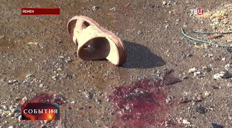 Последствие стрельбы в Йемене