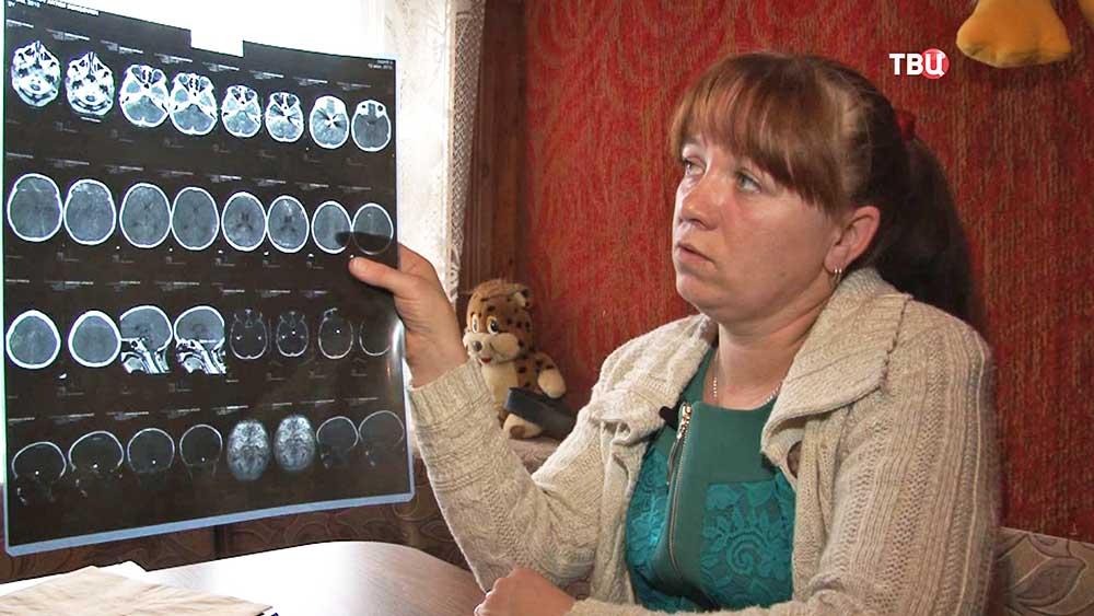 Мама пострадавшего ребенка смотрит рентгеновский снимок