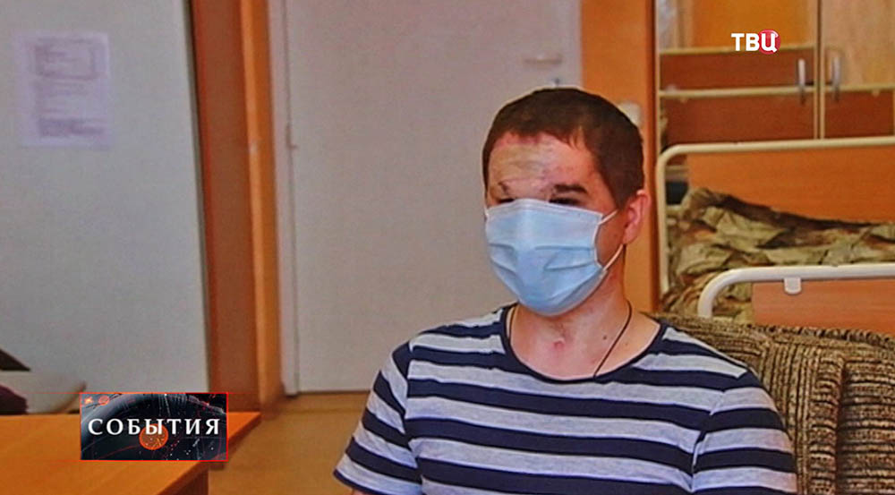 Пересадка лица в россии фото