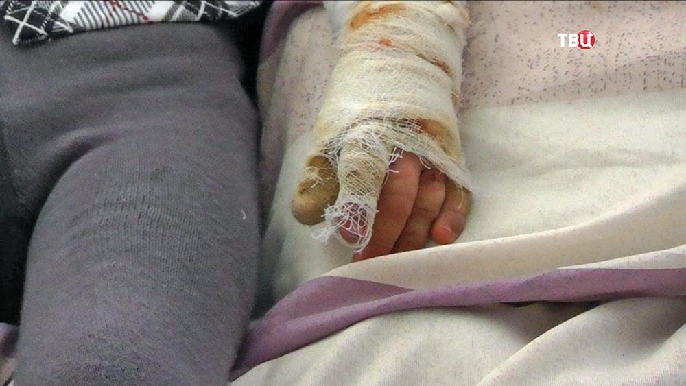 Рука пострадавшего ребенка