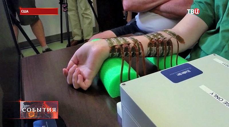 Парализованная рука человека