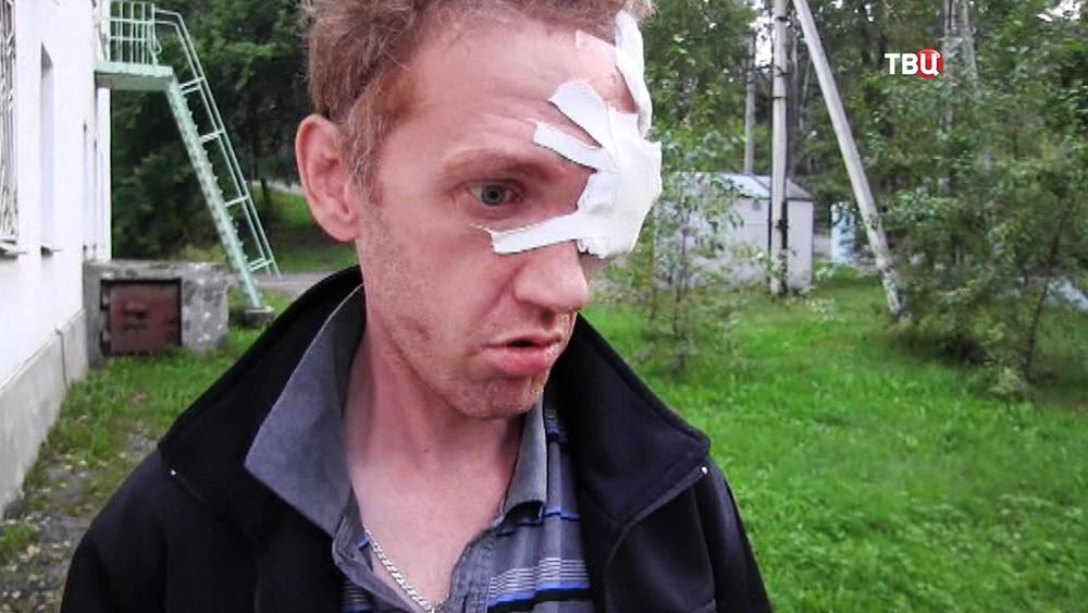 Пострадавший от действий стрелка в Иркутской области
