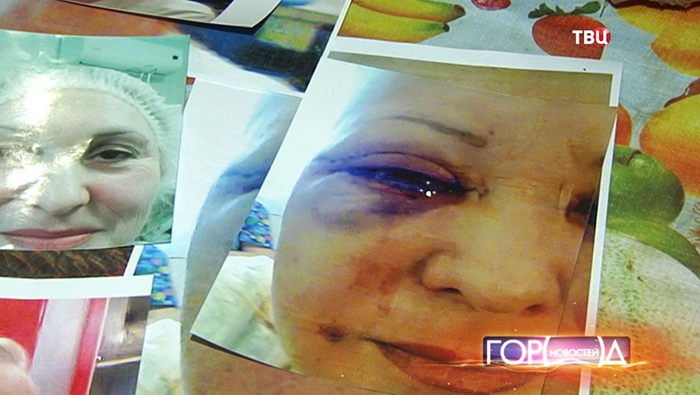 Москвичка, потерявшая зрение после процедуры подтяжки век
