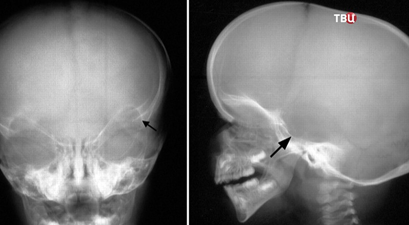 Рентген-снимок головы ребенка