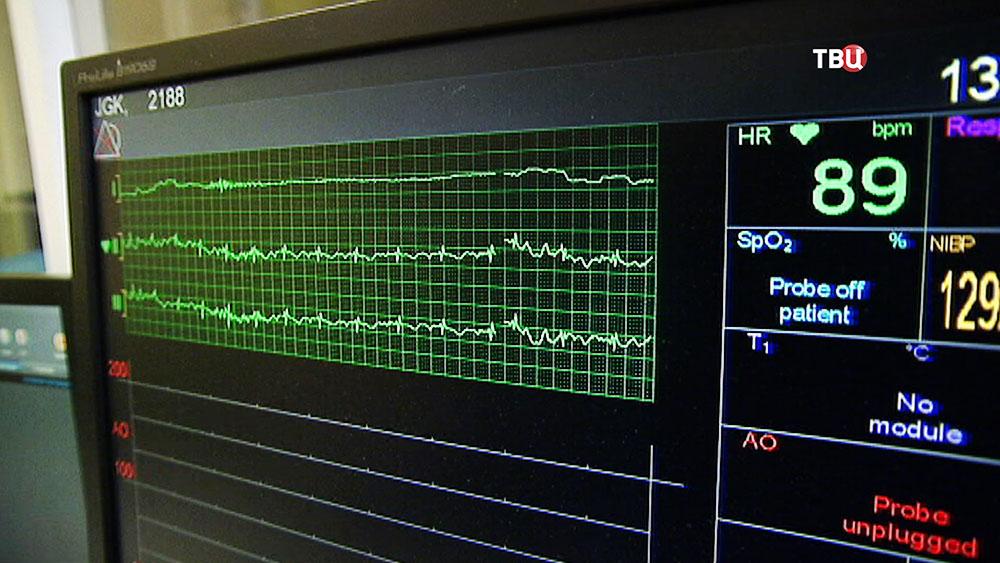 Показатели сердечного ритма на кардиомониторе