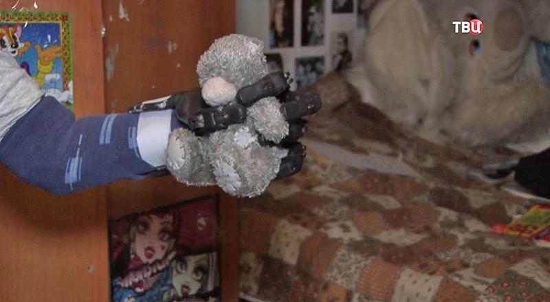 3D-рука протез для девочки
