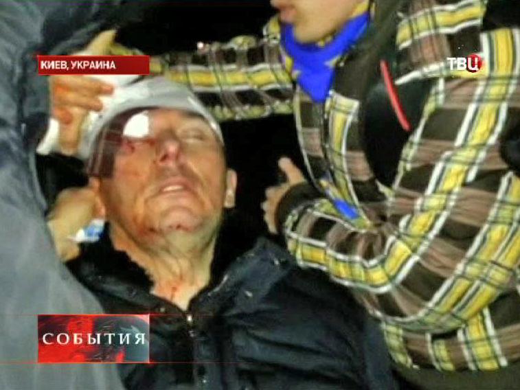 Избитый Юрий Луценко