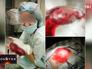 Селфи врачей из операционной