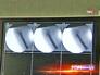 Рентгеновские снимки на экране монитора