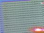 Показатели электрокардиограммы