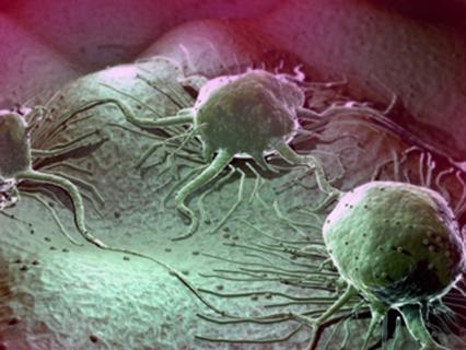 История болезни. Анонс. Рак