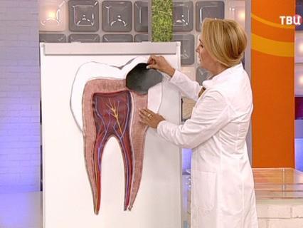 """Доктор И... """"Если болит зуб"""""""