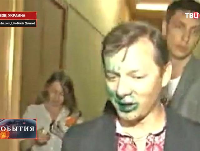 Лидер Радикальной партии Олег Ляшко