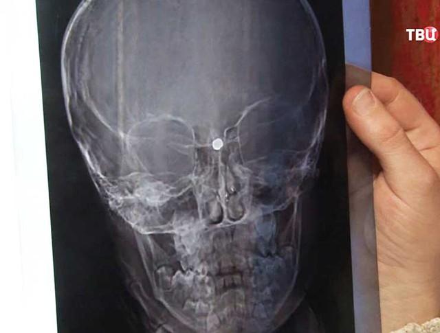 Последствия ранения в голову у ребенка