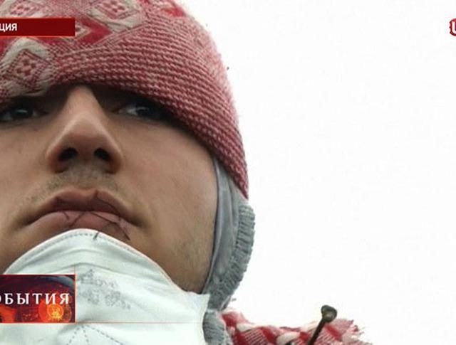 Иранские беженцы зашили рты в знак протеста