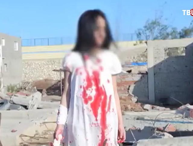 Постановочная фотография ребенка из Алеппо