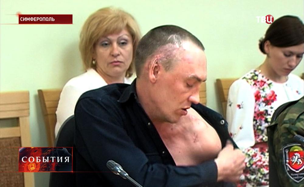 Пострадавшие крымчане от действий украинских радикалов