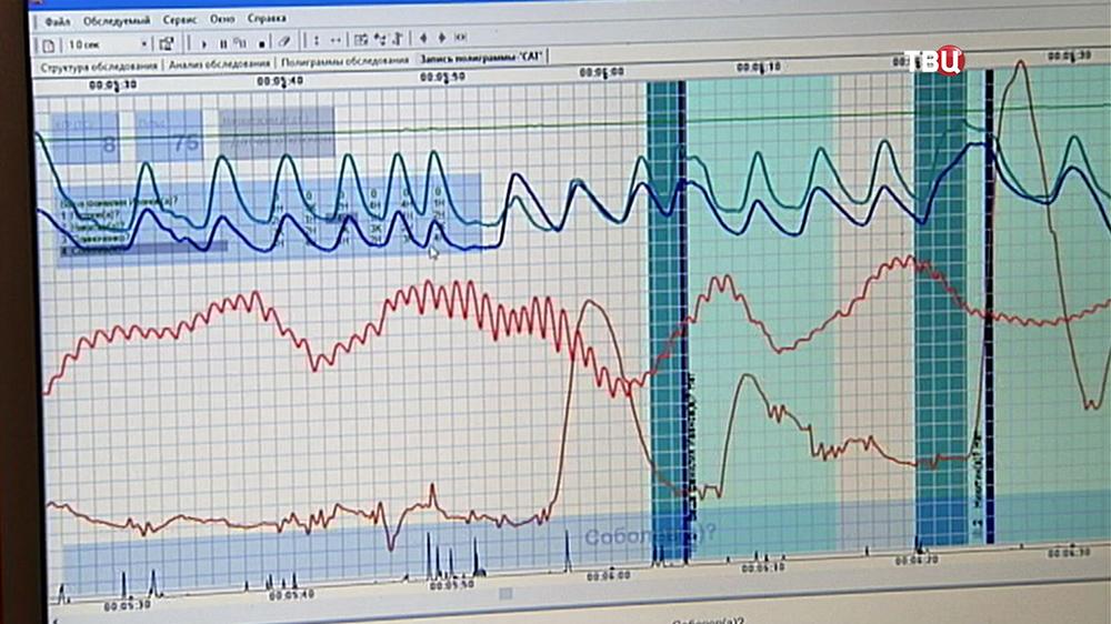 На мониторе кривые тестирования