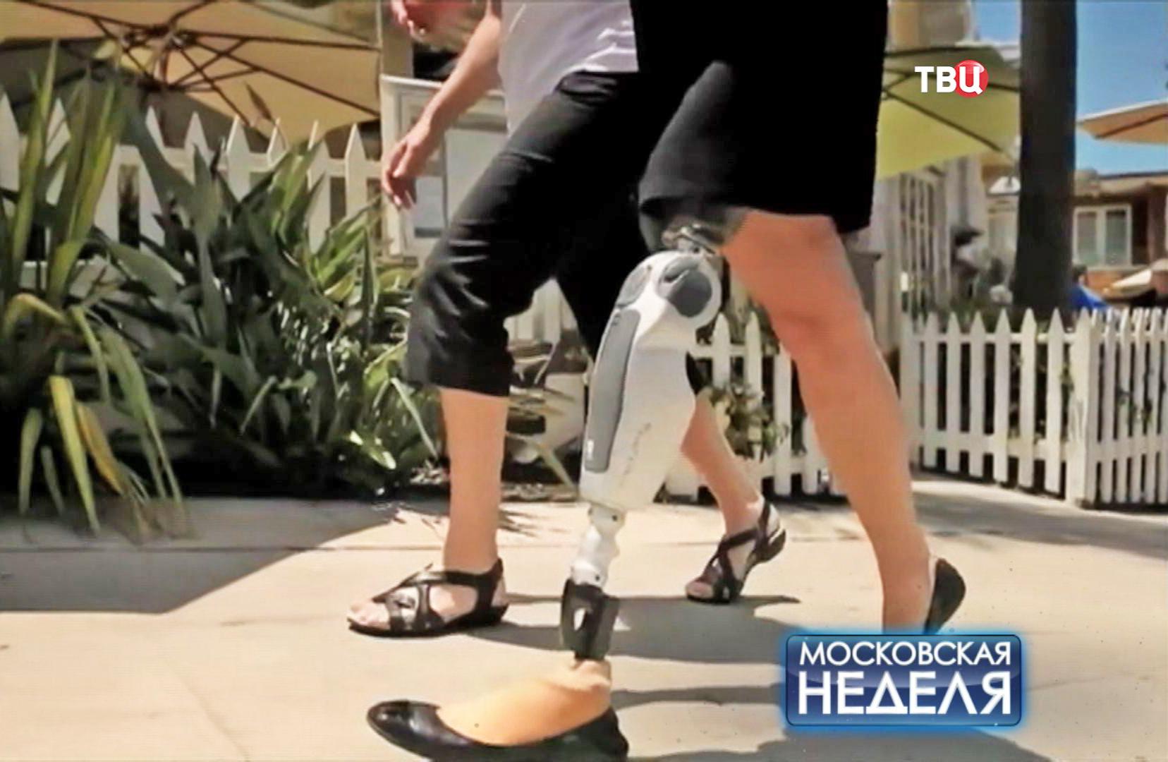 Искусственная нога
