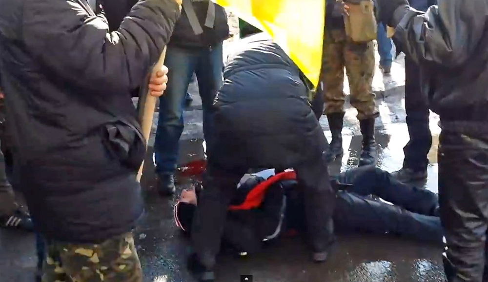 Пострадавший при взрыве в Харькове