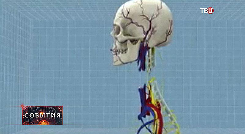 Операция по пересадке головы