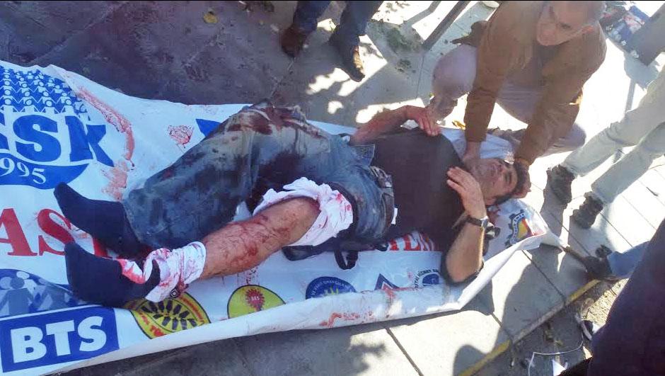 Пострадавший при взрыве в Турции