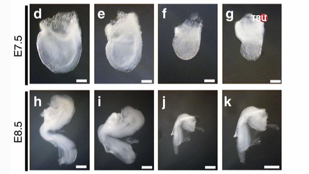 Этапы развития эмбриона