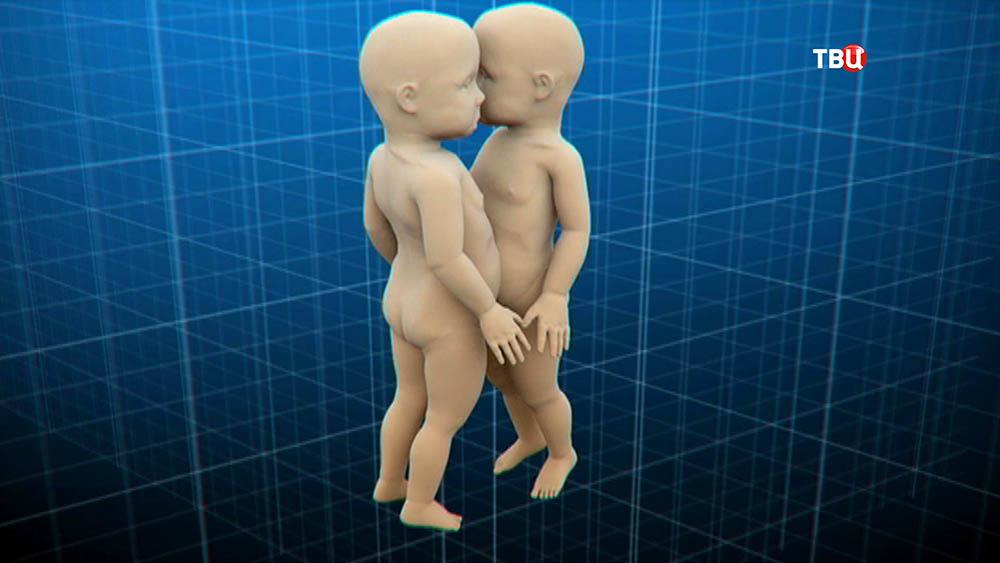 Модель сиамских близнецов