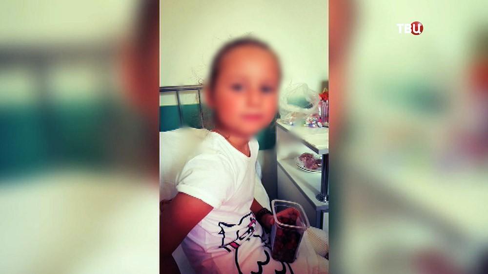 Пострадавшая от ожогов на борту самолета девочка