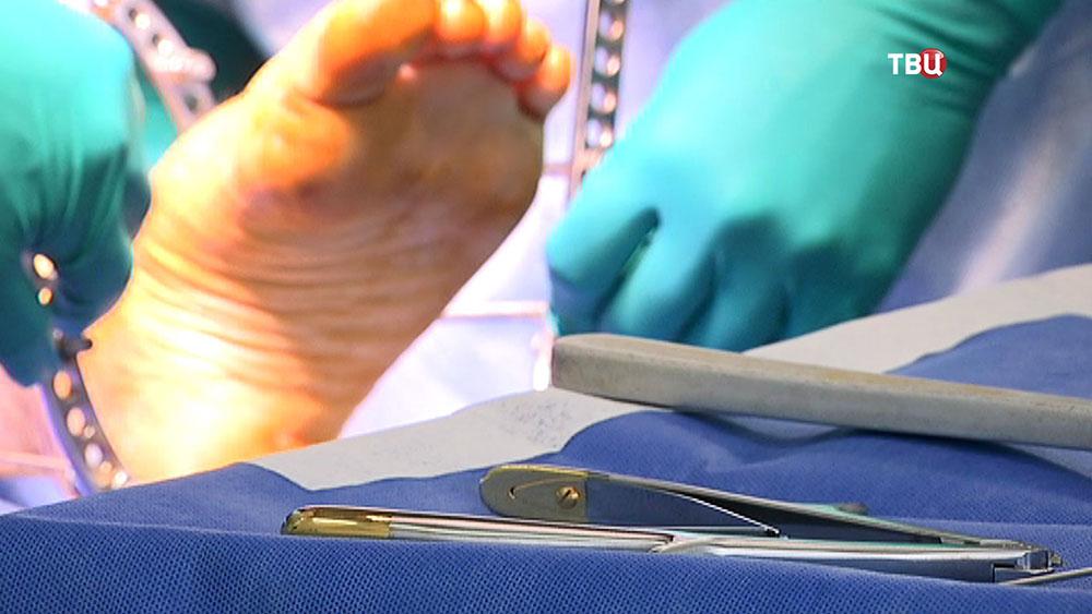 Хирурги проводят операцию на ноге