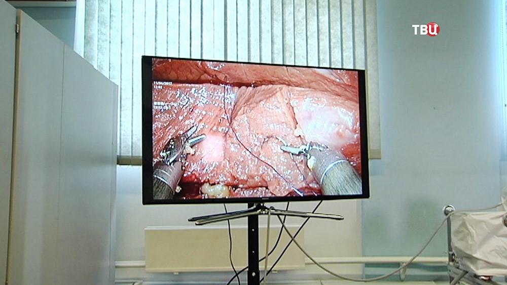 Работ-хирург в больнице