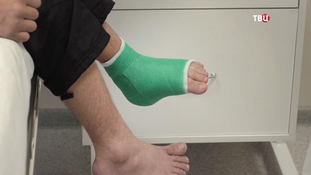 Пациент после проведенной операции на ступне