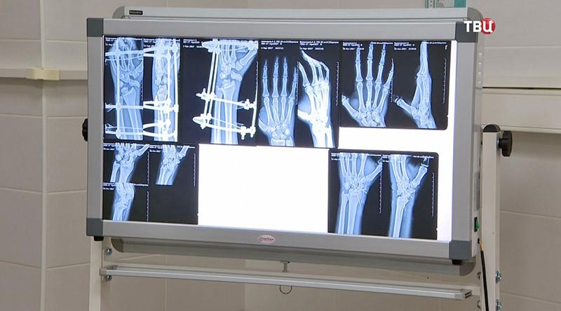 Снимок ног и рук