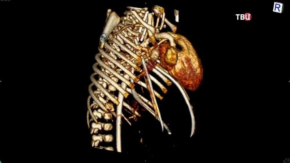 Снимок грудной клетки ребенка с пороком сердца