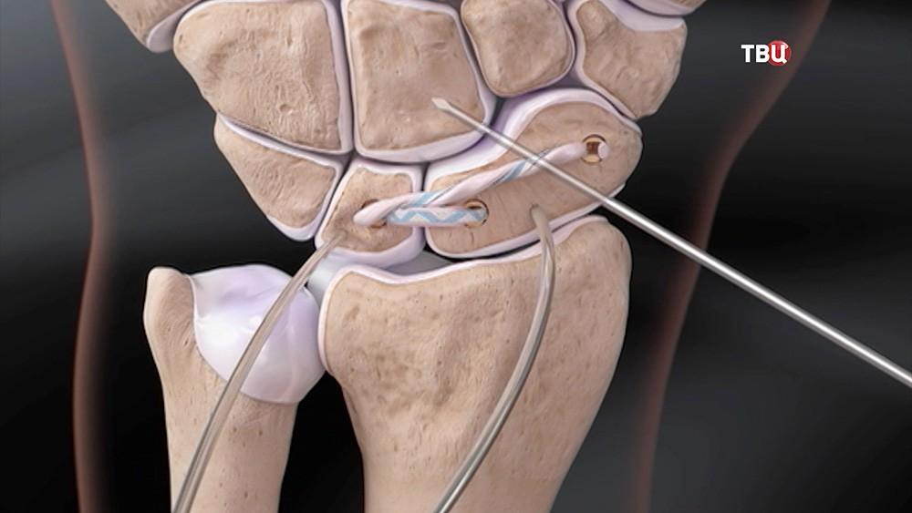 Моделирование хирургической операции