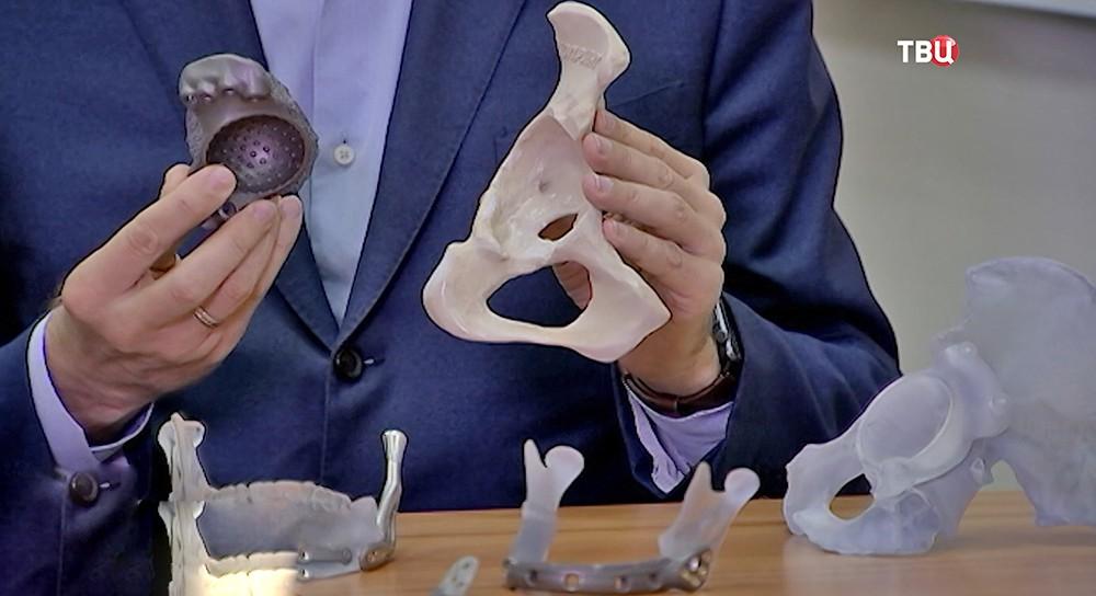 Суставы напечатанные на 3D-принтере