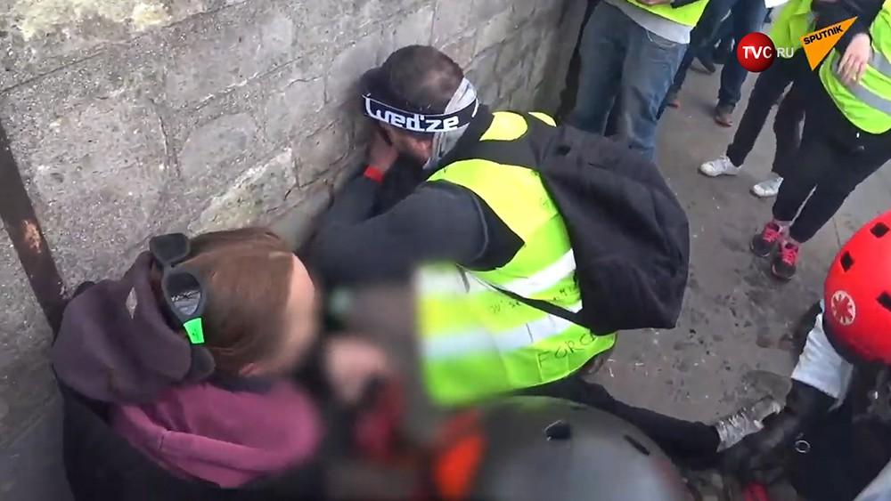 """Пострадавший участник протестов """"желтых жилетов"""""""