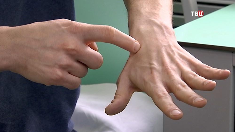 Пациент показывает восстановленную руку после операции