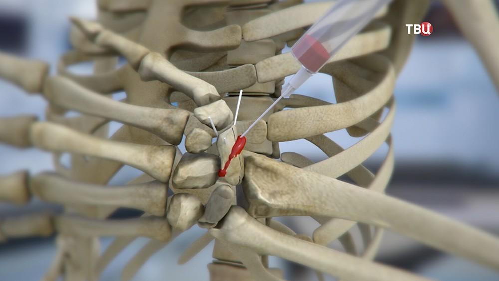 3D-модель восстановления кисти руки