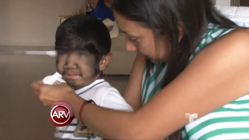 Гипертрихоз у ребенка