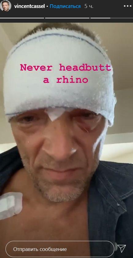 Попавший в аварию Венсан Кассель показал забинтованную голову