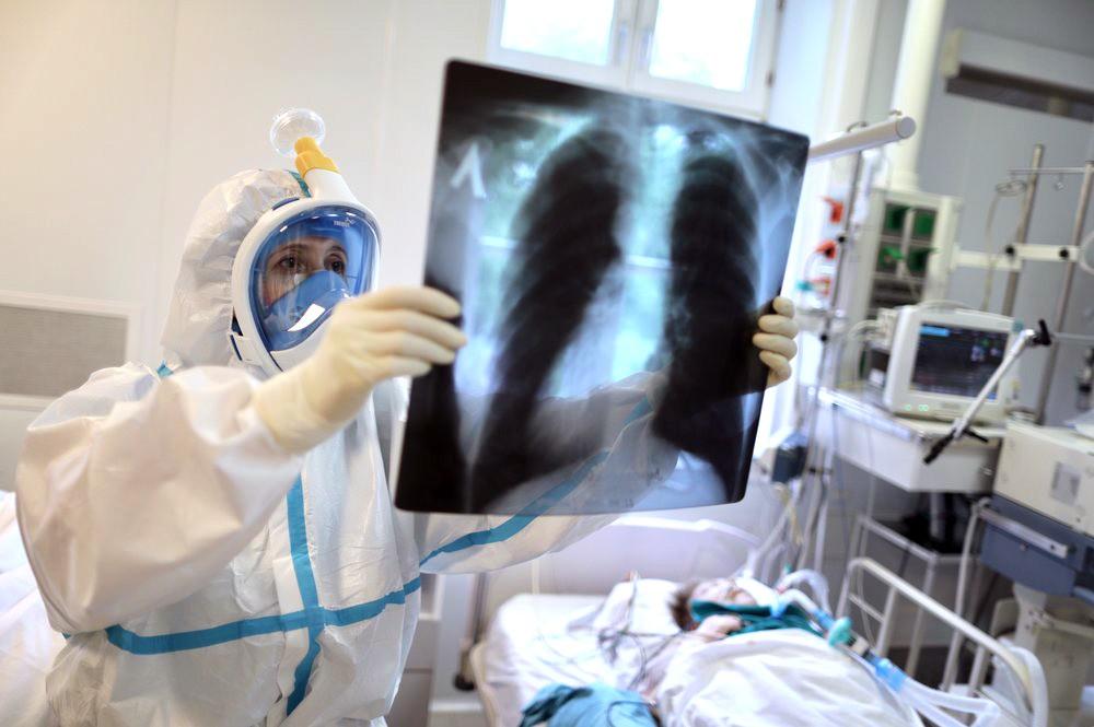 Врач инфекционного отделения изучает рентген