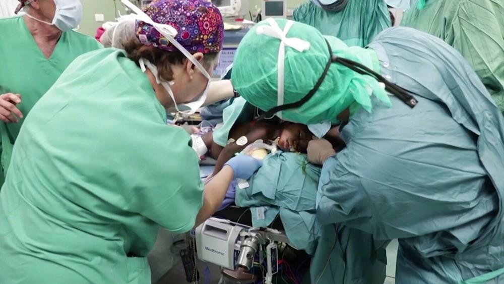 Операция по разелению сиамских близнецов